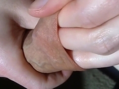 Foreskin Stretching Close Up